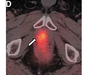 Multimodal imaging of prostate cancer