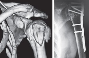 Results of shoulder arthroplasty