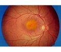 Prediction of age-related macular degeneration basedon the definition of platelet receptors functional activity