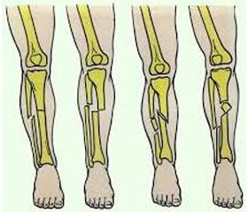Bone mineral density and vitamin D level in persons of different age with lower limb fractures (literature review and results of own researches)