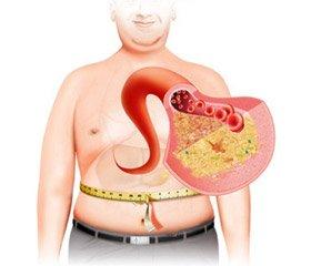 Влияние метаболического синдрома  на артериальную функцию в разных возрастных категориях: современный подход к исследованию жесткости артерий