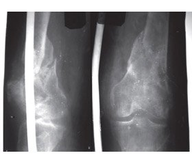 Tactical and technological features of the treatment for damages to the distal metaepiphysis  of the femur