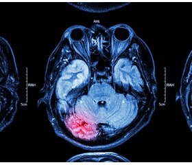 Clinical and neurological features of the vascular pathology of the brain in military personnel evacuated from the zone of Joint Forces Operation