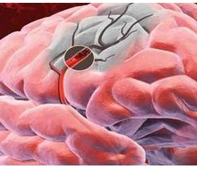 Optimizing the treatment of motor and cognitive disorders in ischemic stroke