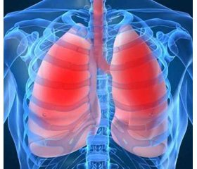 World experience on the treatment of interstitial diseases of the lungs in children (up-date 2017)