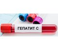 Hepatitis C virus in patients with chronic kidney disease treated with renal replacement therapy