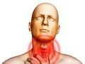 Оптимизация терапии боли в горле