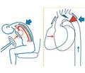 Травма сердца: классификация, механизмы ипроблемы диагностики упострадавших с травмой грудной клетки (литературный обзор с результатами собственных наблюдений)