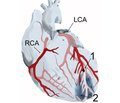 Шкала стратифікації сприятливого й несприятливого прогнозу  й виникнення кардіальних подій при гострому інфаркті міокарда залежно від ступеня стенозу вінцевих артерій та особливостей диференційованого впливу різних уражених артерій  на перебіг захворювання впродовж двох років