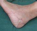 Применение постоянного разрежения в комплексном лечении ран с дефектами мягких тканей