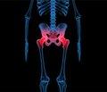 Концепция ведения больных коксартрозом на фоне дегенеративно-дистрофического поражения пояснично-крестцового отдела позвоночника