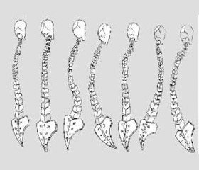 Peculiarities muscle imbalance in patients with Scheuermann's disease with different variants of the spine sagittal contour