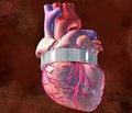 Роль і місце монотерапії і фіксованої комбінації в лікуванні артеріальної гіпертензії