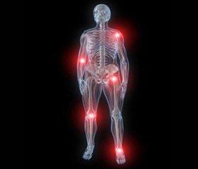 Діагностика і лікування поперекового остеохондрозу