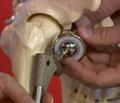 Анализ напряженно-деформированного состояния проксимального отдела бедренной кости при внутреннем остеосинтезе по поводу переломов шейки