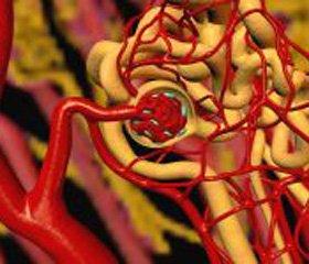 Урапідил (Ебрантил®) як ефективний засіб лікування періоперативної гіпертензії та ускладнених гіпертензивних кризів