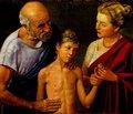 Що знали про цукровий діабет у стародавні часи? (На допомогу викладачам та слухачам шкіл діабету)