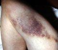 Место профилактики  тромбоэмболических осложнений  в комплексе интенсивной терапии травматической болезни у геронтологических больных