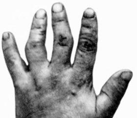 Эндемический деформирующий остеоартроз: этиология, диагностика, лечение, профилактика