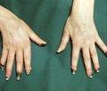 Контроль полноты десимпатизации при эндоскопической грудной симпатэктомии по поводу болезни Рейно