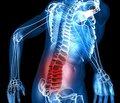 Комплексне немедикаментозне лікування хворих з хронічною вертеброгенною патологією