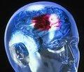 Атипичные проявления мозговых инсультов (Литературный обзор и собственное наблюдение)