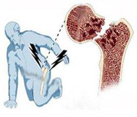 Эпидемиология переломов проксимального отдела бедренной кости у городского населения Российской Федерации: результаты многоцентрового исследования