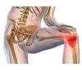 Лікування артрозу колінного суглоба