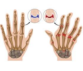 Ювенильный артрит: терминология, классификация, диагностические критерии, этиология, патогенез, современные аспекты