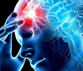 Порушення мозкового кровообігу: причини і види