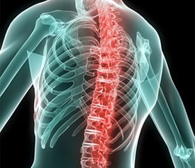 Treatment of spine injuries in patients with polytrauma