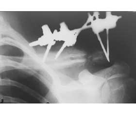 Case of chronic osteomyelitis of the clavicle with hyperostosis reaction in a fracture