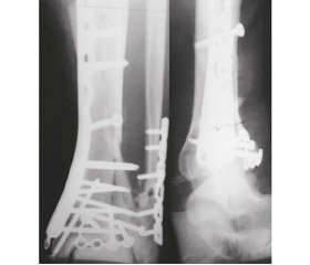 Closed minimally invasive osteosynthesis of metaepiphyseal fractures of distal tibial bones