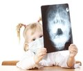 Прогностичне значення імунної дисфункції у розвитку хронічних синуїтів у дітей