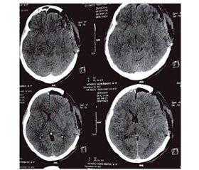 Применение Глиятона® у больных с тяжелой черепно-мозговой травмой и ишемическим инсультом  с целью коррекции церебральной холинергической недостаточности у больных со сформированным стойким апаллическим синдромом