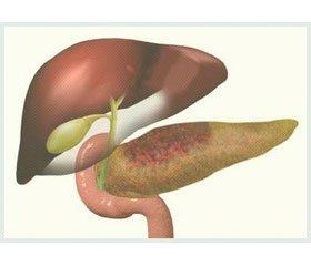 Determination of Intraabdominal Pressure in Patients with Severe Acute Pancreatitis
