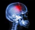 Особенности лечения больных в восстановительном периоде черепно-мозговой травмы