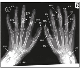 Calcinosis in systemic sclerosis: prevalence, clinical picture, management, complications