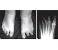 Weil Osteotomy in the Surgical Treatment of Metatarsalgia
