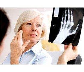 Трудности диагностики ревматоидного артрита у пожилых пациентов