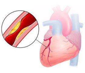 Влияние комбинированной терапии сприменением альфа-липоевой кислоты науровень фракталкина у больных ишемической болезнью сердца и сахарным диабетом 2-го типа