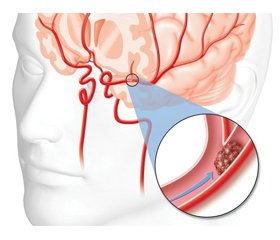 Acute stroke in women: features of detection and correction of carbohydrate disorders