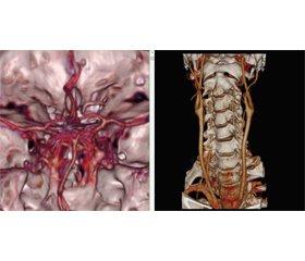 Migraine complications. Migrainous infarction: case report analysis