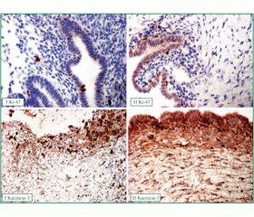 Вплив передопераційного призначення агоністів гонадотропін-рилізинг-гормонів перед видаленням ендометріом яєчників у пацієнток репродуктивного віку на морфофункціональний стан яєчників