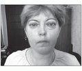 Клинический случай сочетанного течения диффузного токсического зоба и аутоиммунной офтальмопатии