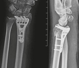 Fixation of AO 23-C severe radius fractures using volar plate. Analysis of the causes of treatment complications