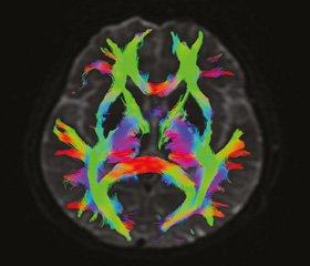 Primary lateral sclerosis: a scientific review and own observation