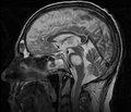 Центральний понтинний мієліноліз: діагностика, особливості перебігу