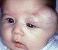 Агрессивный фиброматоз у детей