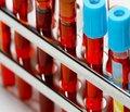 Динаміка імунологічних показників крові на тлі базисної терапії бронхіальної астми в дітей шкільного віку